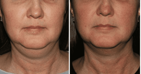 Kybella Englewood & Denver, CO