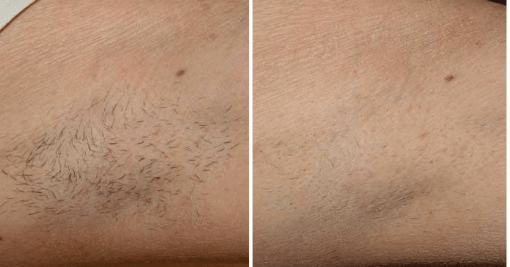 Laser Hair Removal Before & After Englewood & Denver, CO
