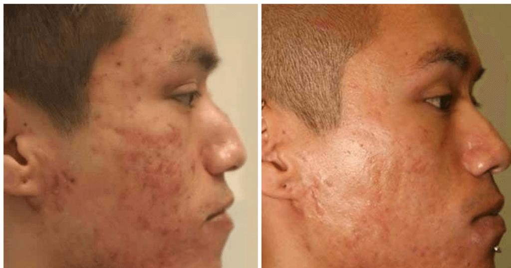 Photodynamic Therapy Before & After Englewood & Denver, CO
