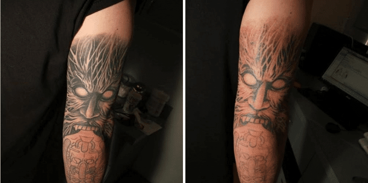 Laser Tattoo Removal Before & After Englewood & Denver, CO