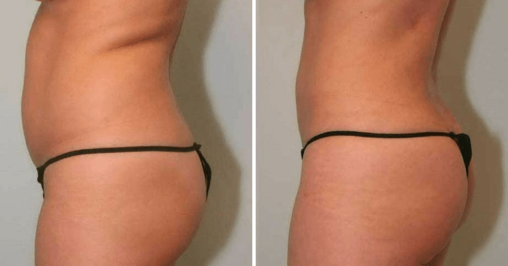 Smartlipo™ Before & After Englewood & Denver, CO