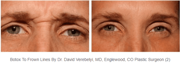 Botox-frown-lines-eyes_Dr-Verebelyi
