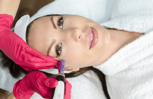 Microneedling With SkinPen Englewood & Denver