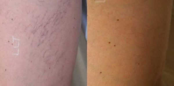 Varicose Veins Englewood & Denver