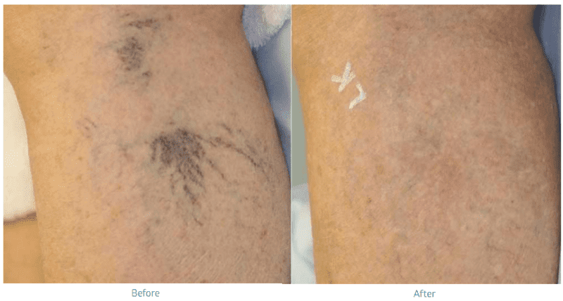 Sclerotherapy Vein Removal Denver