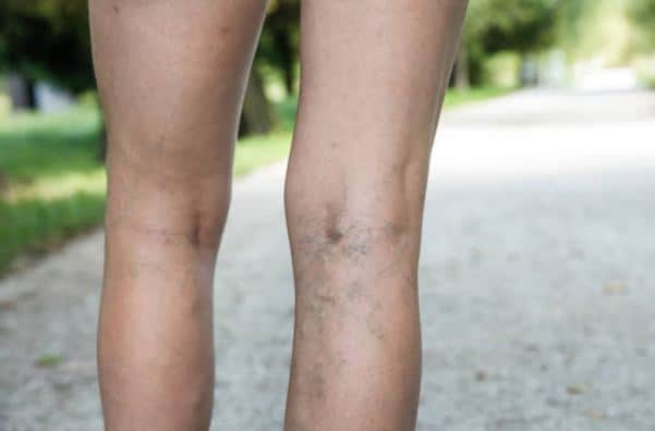Sclerotherapy Englewood