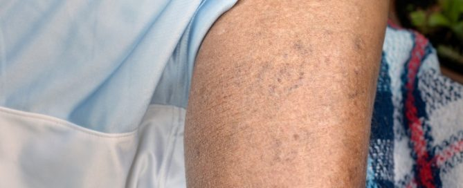 Englewood & Denver Sclerotherapy