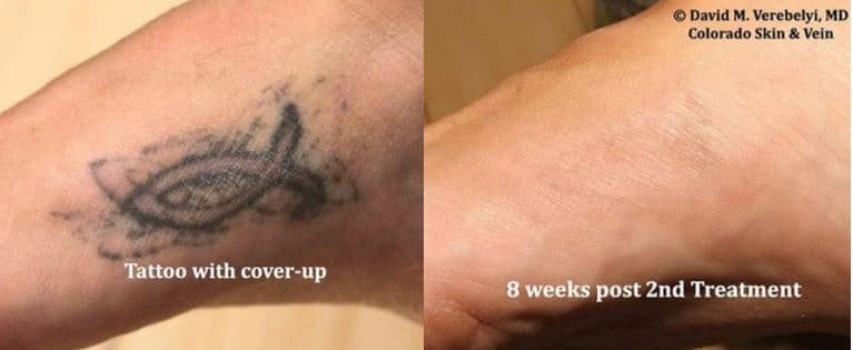 Tattoo Removal Englewood