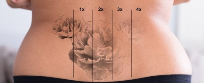 Laser Tattoo Removal Englewood