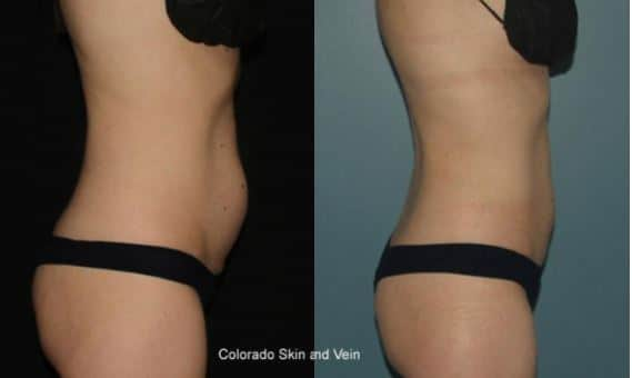 Coolsculpting Englewood