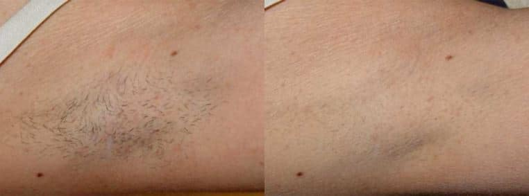 Laser Hair Removal Englewood