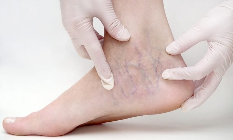 Denver Sclerotherapy